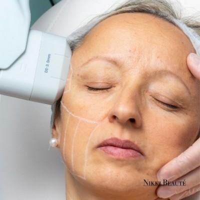 HIFU-behandeling voor gezicht