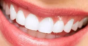 Tanden Bleachen