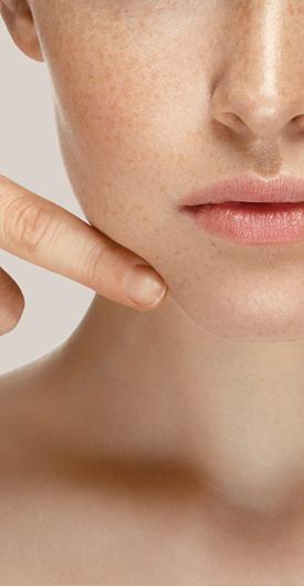 Huidverstrakking en huidverjonging VPL