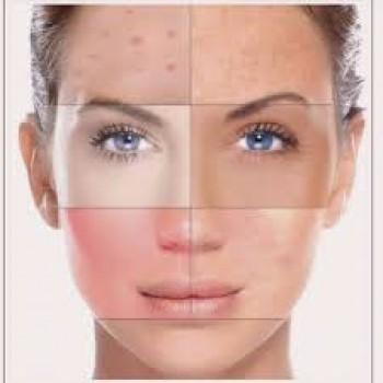 Basic Face Treatment
