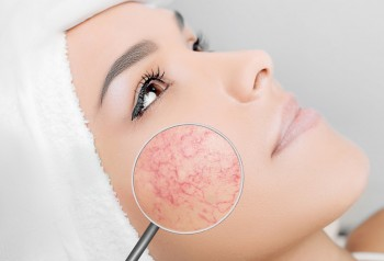 Verwijderen van cosmetische imperfecties