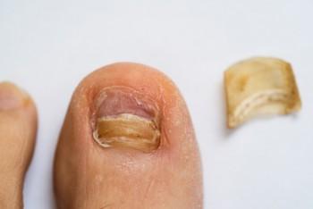 Onychoplastie - Nagelcorrectie / nagelregulatie